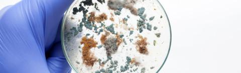 Test Microbe Levels